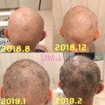 【大丈夫】汎発型脱毛症でも生えた。通院せず毛が生えるまでにやったことまとめ